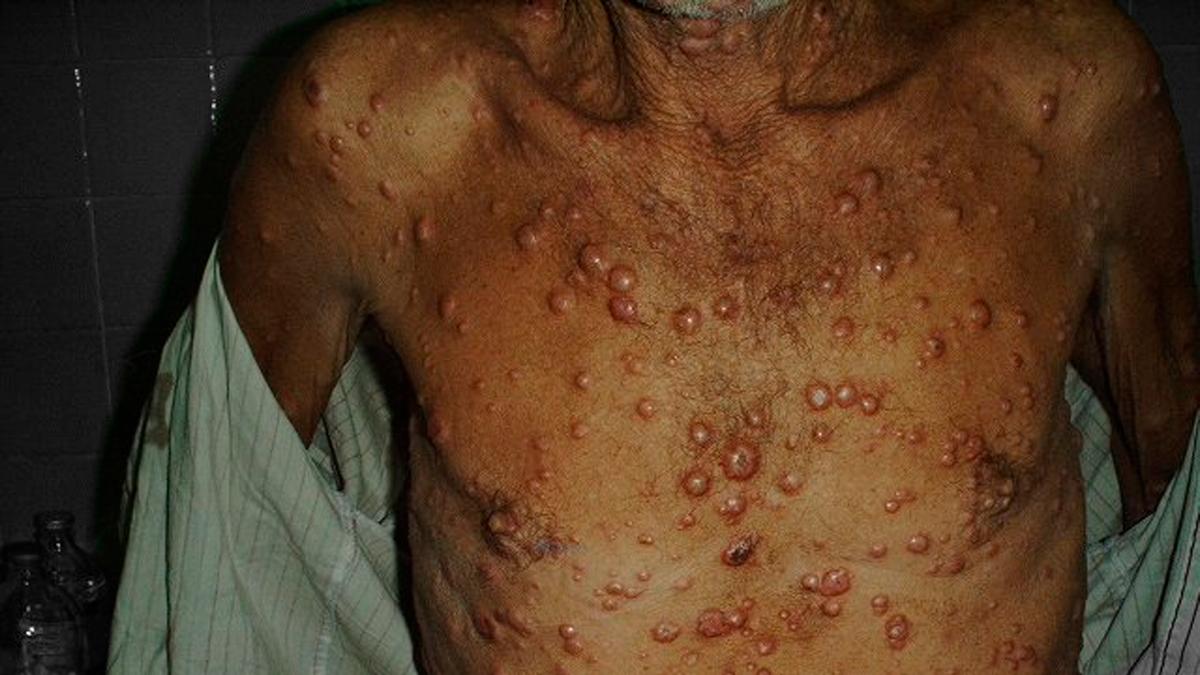 Lepra en 18 estados de México