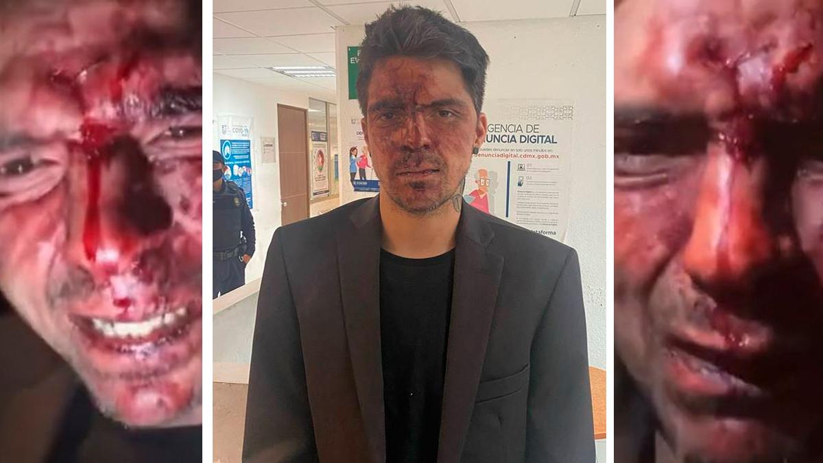 César D'Alessio aseguró que fue golpeado por el Ex-gobernador Arturo Montiel